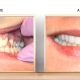 Outstanding Smile Makeover by Dr. Jeffrey Fox
