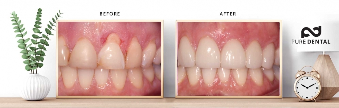 How Pure Dental fixes receding gums without surgery