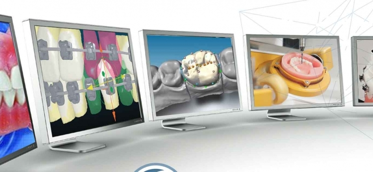 The Benefits of Having an On-site Digital Dental Lab